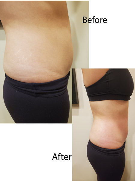 SharpLight Body Contouring - Results after 1st treatment