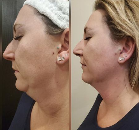 SharpLight Facial Contouring treatment showing results after 1 treatment on a woman's face