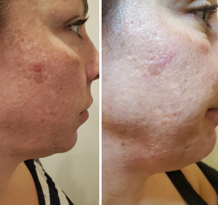 RF Photo Facial - Results after 1st Treatment