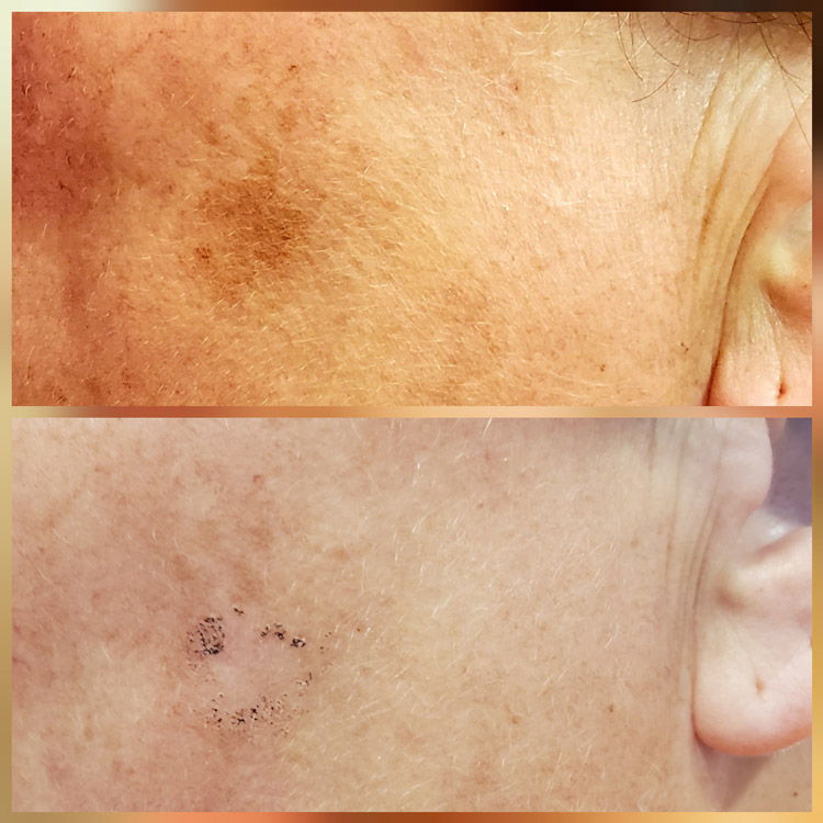 VP Dual Laser 1st Treatment
